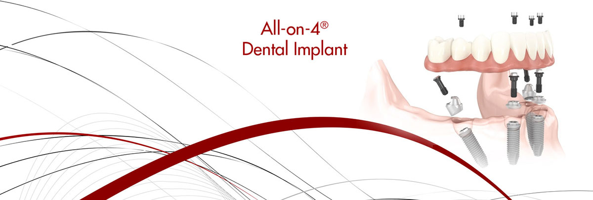 San Jose All-on-4 Dental Implants