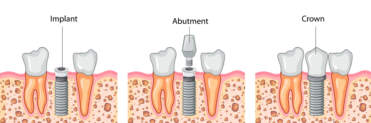 San Jose The Dental Implant Procedure