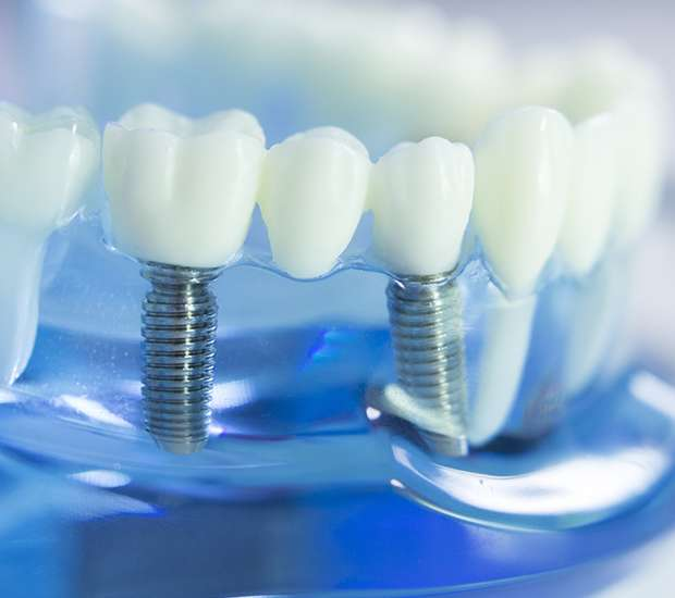 San Jose Dental Prosthetics