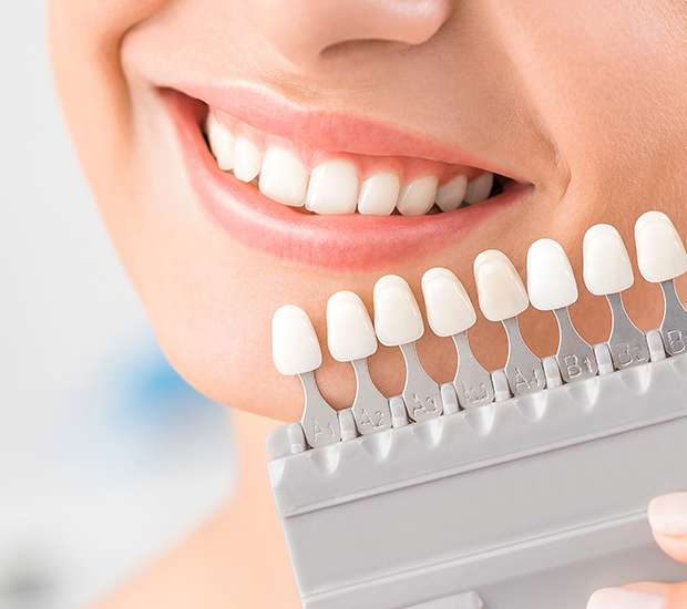 San Jose Dental Veneers and Dental Laminates