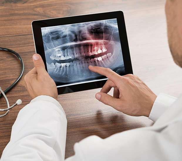 San Jose Helpful Dental Information