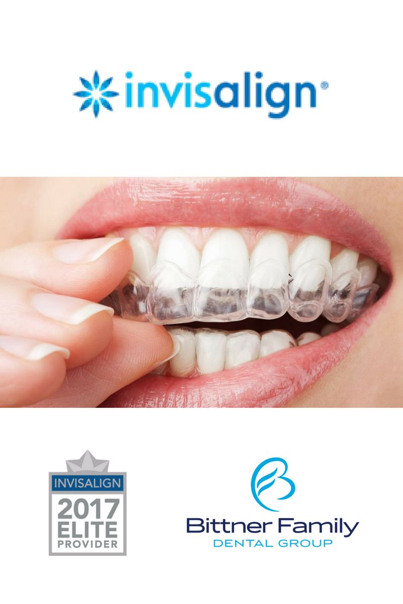 Top   Questions Our Patients Ask About Invisalign®