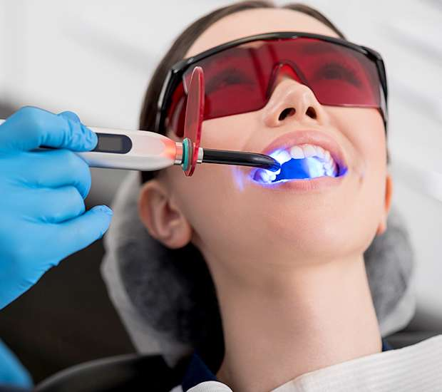 San Jose Professional Teeth Whitening