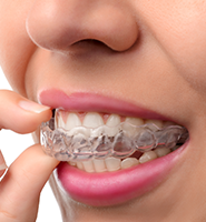 Clear Aligners - Almost Invisible Braces San Jose, CA