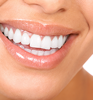 Teeth Whitening Services San Jose, CA