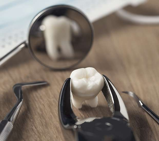 San Jose When Is a Tooth Extraction Necessary